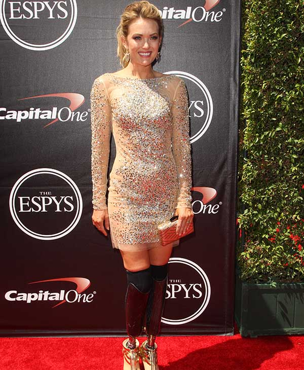 http://cdn.abclocal.go.com/content/creativeContent/images/cms/071515-cc-espys-red-carpet-amy-purdy-img.jpg