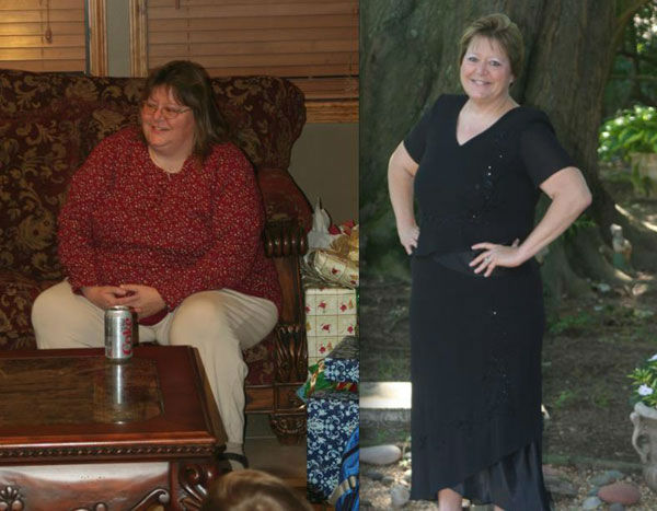 "<div class=""meta ""><span class=""caption-text "">Before and after photo of Kathleen Riser's weight loss journey (Facebook, Kathleen Riser)</span></div>"