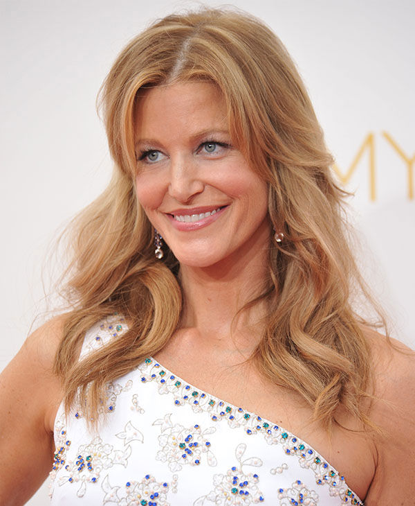 Anna Gunn <span class=meta>(Richard Shotwell&#47;Invision&#47;AP)</span>