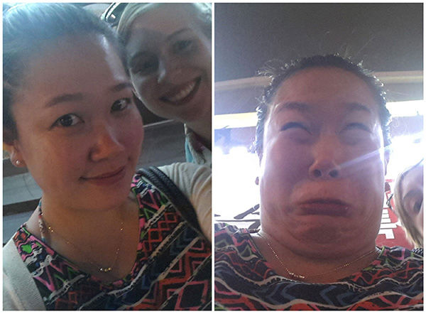 Clearly this young woman didn&#39;t know about one of her allergies after swelling up in this right photo. <span class=meta>(reddit.com&#47;user&#47;nutella_belly)</span>