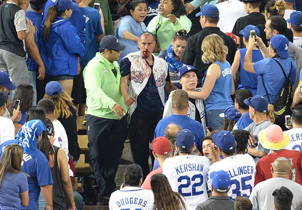 "<div class=""meta image-caption""><div class=""origin-logo origin-image none""><span>none</span></div><span class=""caption-text"">A fan with a bloodied face is led away by security at Dodger Stadium on Monday, June 26, 2017. (Stephen Carr / Daily News / SCNG)</span></div>"