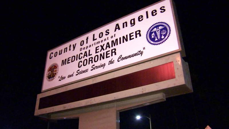 Human leg stolen from vehicle in downtown LA