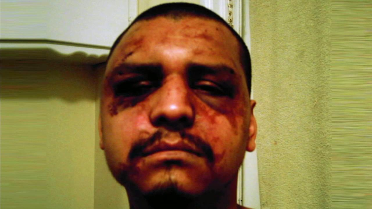 Gabriel Carrillo, shown after he was arrested and severely beaten at the Los Angeles County Mens Central Jail, has been cleared of wrongful arrest on Friday, Nov. 6. 2015.
