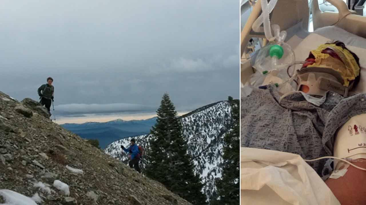Jason Lopez in an undated photo hikes a mountain (left). He is hospitalized (right) after falling down a mountainside in Mount Baldy.