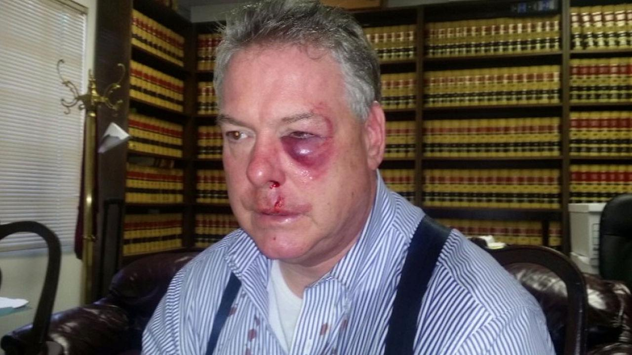 Defense attorney James Crawford said an investigator with the Orange County District Attorneys Office attacked him at the Central Justice Center on Wednesday, March 9, 2016.