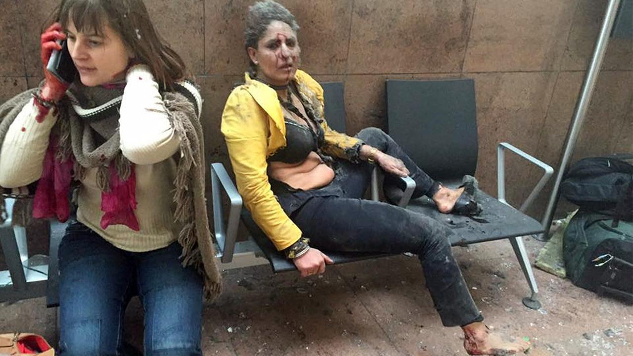 In this photo provided by Georgian Public Broadcaster and photographed by Ketevan Kardava two women wounded in Brussels Airport in Brussels, Belgium, Tuesday, March 22, 2016.