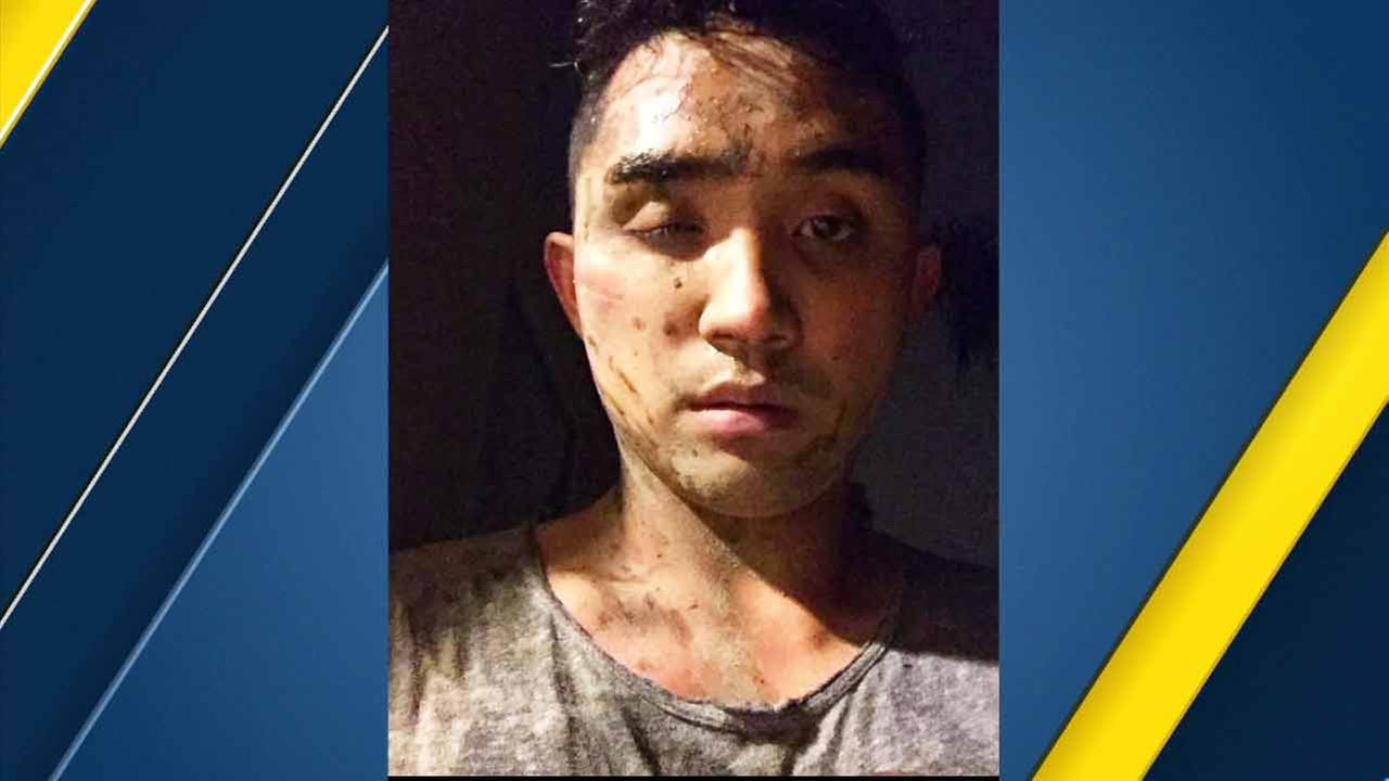 Chris de la Cruz in a photo he posted to Facebook after he was attacked by suspects in an alleged hate crime in West Hollywood on Friday, April 8, 2016.