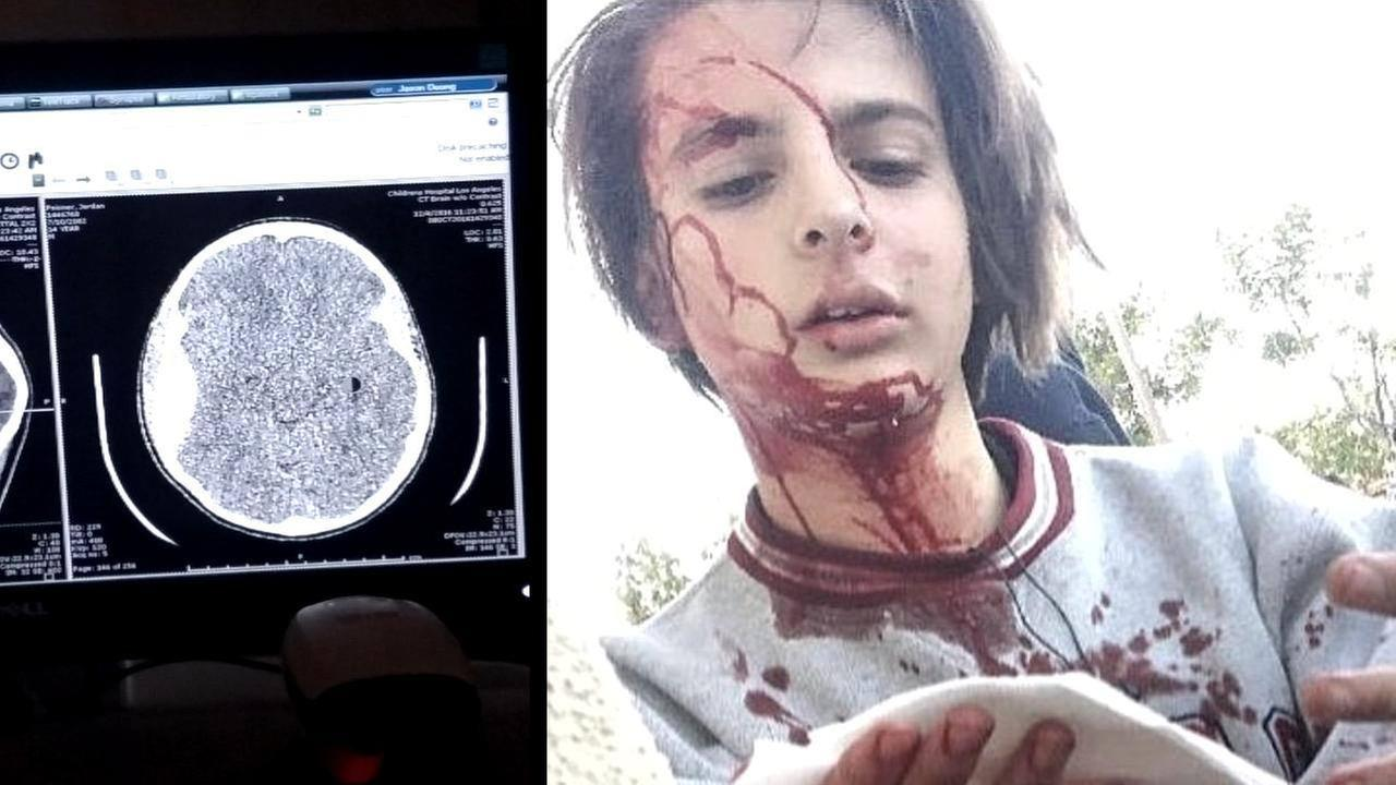 Images show a skull fracture and a still from a Snapchat video of Jordan Peisner, who was punched in the head by a kid he didnt know, in West Hills.