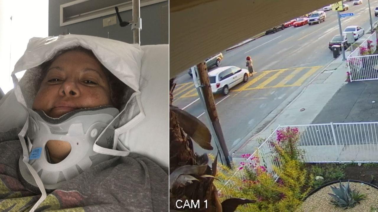 Penny Casbon is shown in a photo at the hospital after she was struck by a van while walking across the street in Van Nuys in late March.