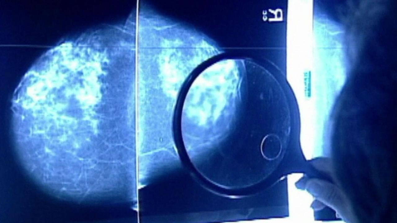 A doctor looks over a mammogram image in an undated file photo.