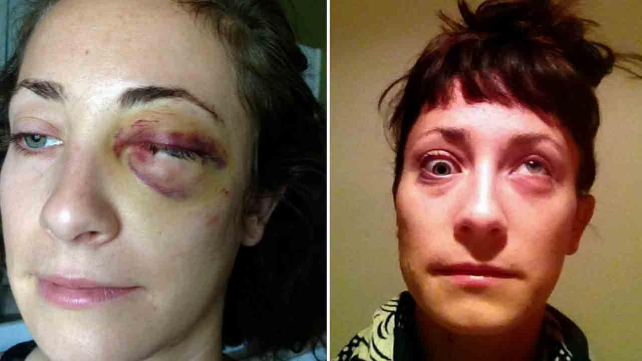 Starline Tours is being sued by a woman who claims a tour bus accident fractured her skull and injured her eye.