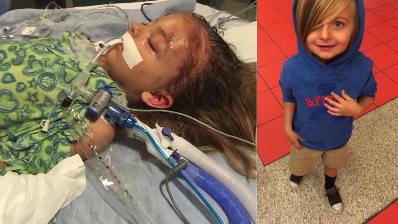 Lennox Lake, 6, was severely injured in a crash allegedly caused by a drunk driver who had been deported from the U.S. 15 times.