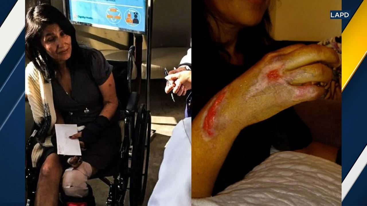 A photo shows Maria Torres injuries following a hit-and-run crash on Nov. 12, 2017.