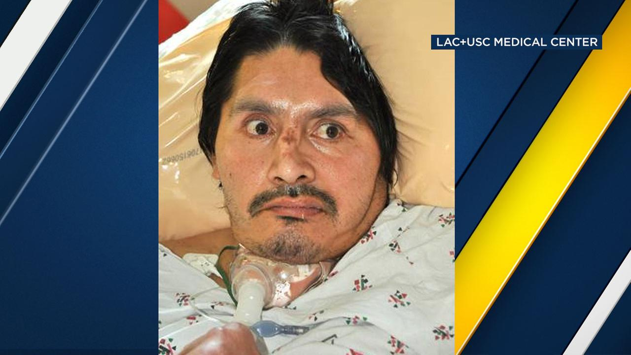 This man was found by paramedics near 6th and Alvarado streets near MacArthur Park on Aug. 19, hospital officials said.