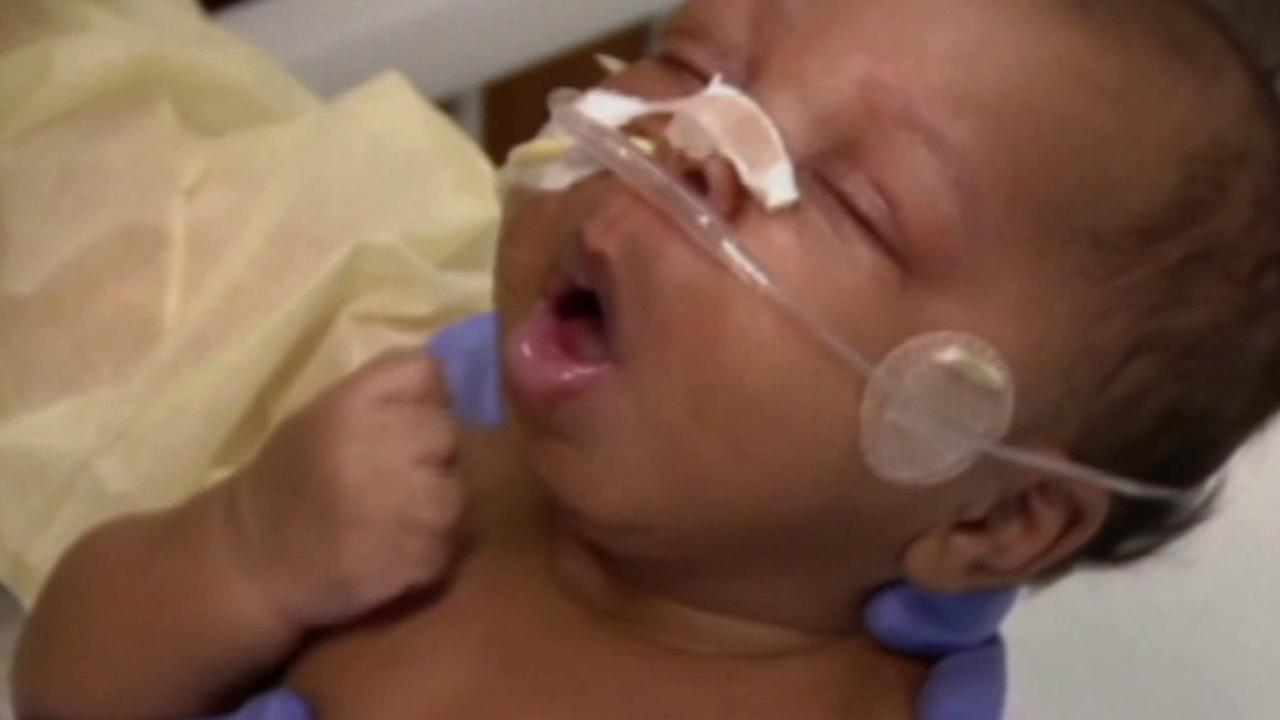 A baby is treated for enterovirus 68 in this undated file photo.
