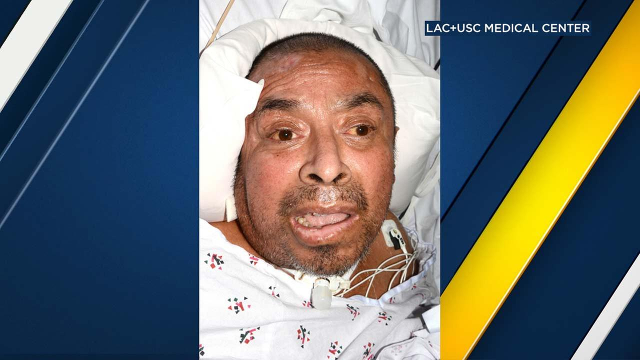 The Los Angeles County+USC Medical Center released this photo of a man who has been hospitalized since Jan. 31, 2017.