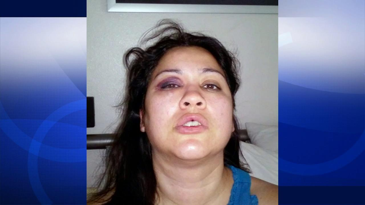 Lyvette Crespo is seen in with facial injuries, allegedly from a fight with her husband Daniel Crespo, who she shot and killed. The photo was released Wednesday, Oct. 22, 2014.
