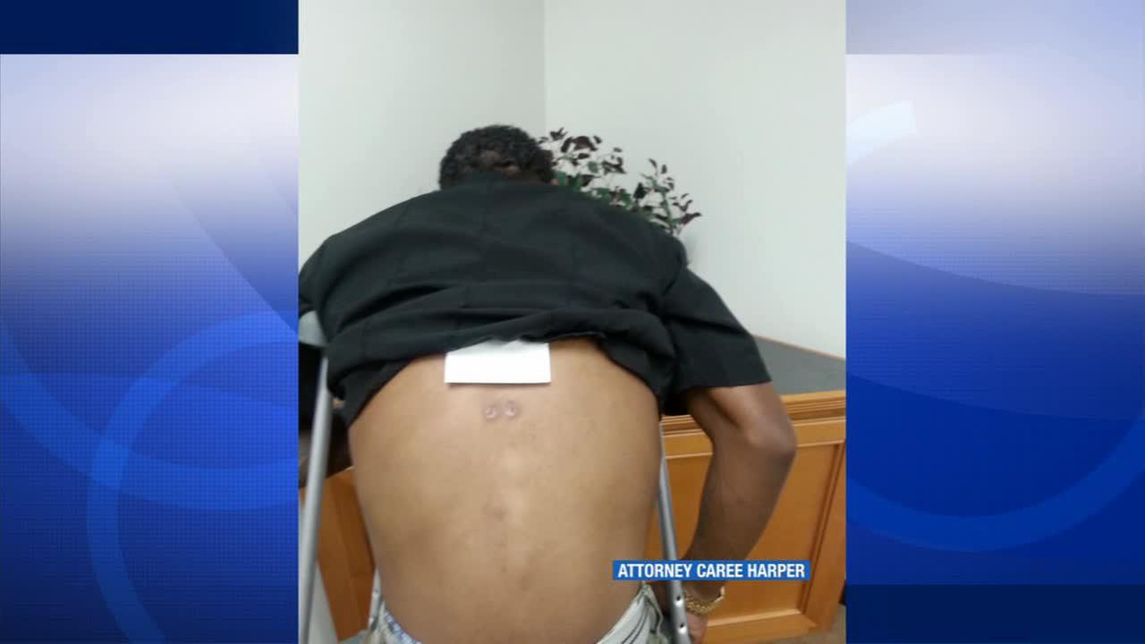 Injuries to Clinton Alfords back from an alleged beating by LAPD officers are seen. The photo was released Saturday, Oct. 25, 2014.