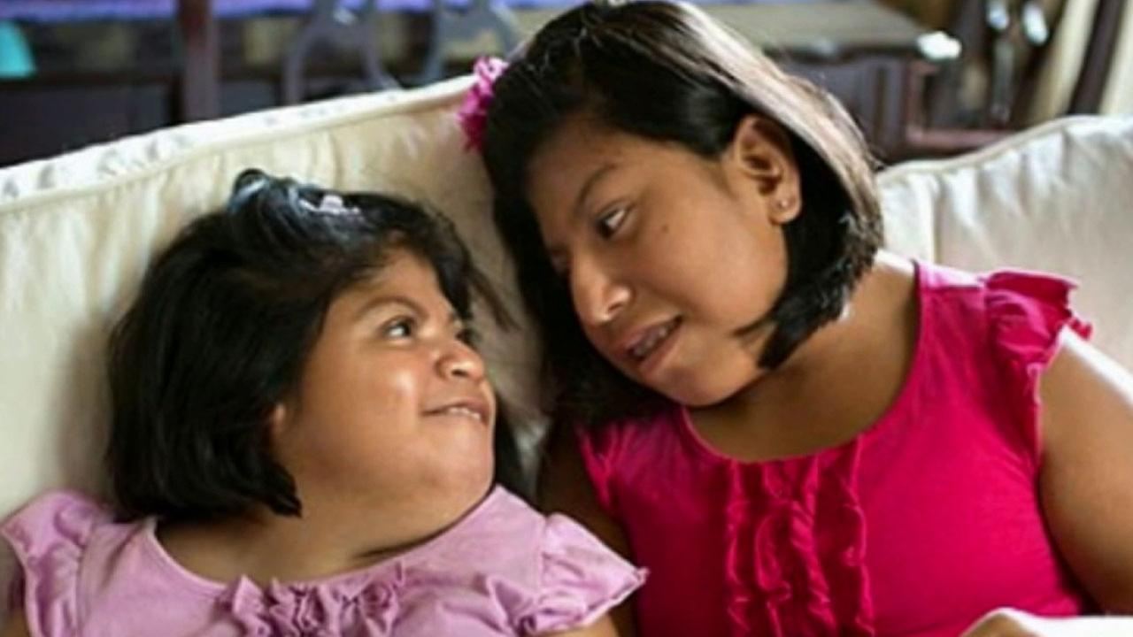 Teresa (left) and her sister Josie (right) made national headlines when local doctors embarked on a risky surgery to separate the Guatemalan twins.