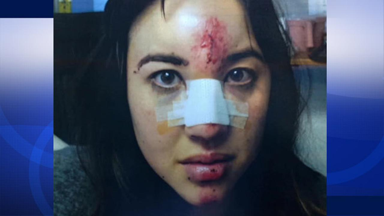 Alexandra Hollon was injured in a hit-and-run in South Pasadena on Sunday, Dec. 21, 2014.