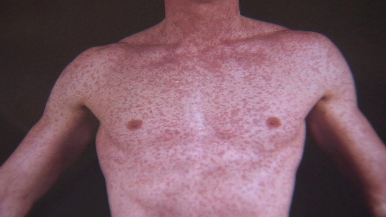 This undated file photo shows a measles outbreak on a young boys body.