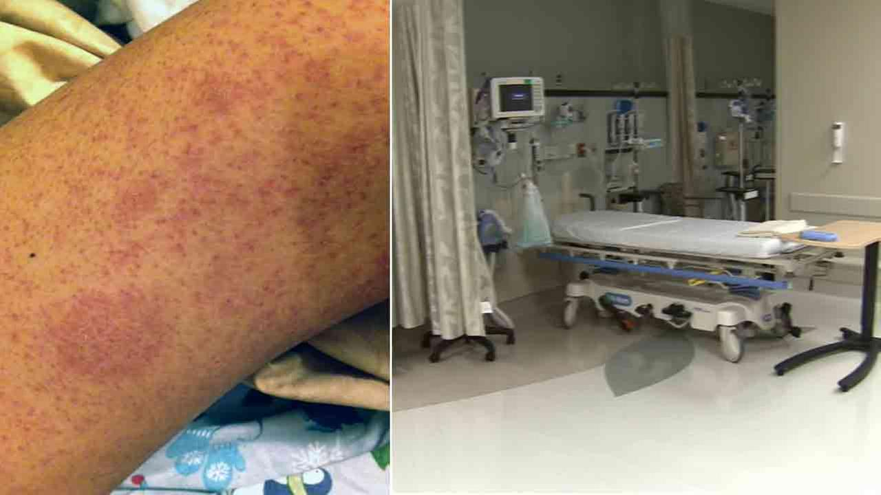 The Center for Disease Control and Prevention has notified hospitals to be on the lookout for measles cases as the contagious disease continues to spread.
