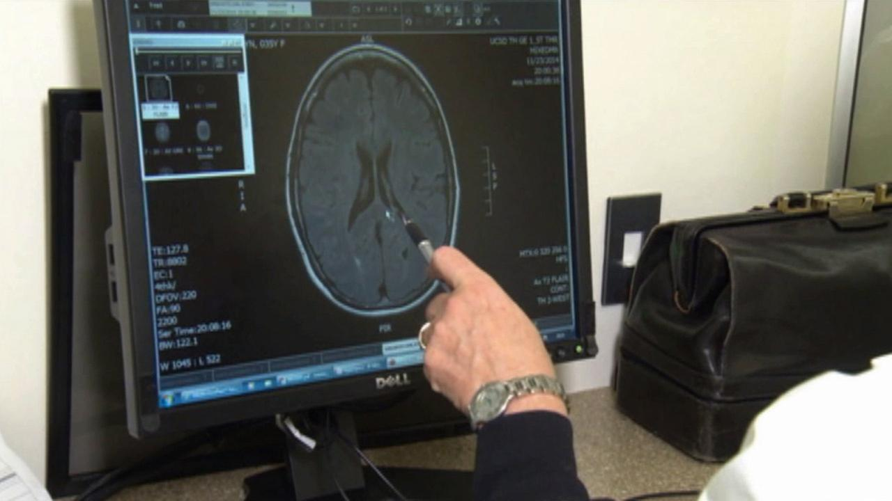 Neurologist Dr. Irene Litvan looks over a brain scan. She is looking into the effects a blood pressure drug can have to slow down the progression of Parkinsons disease.