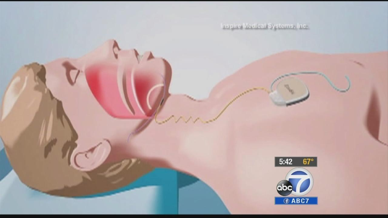 A new implantable device is helping those with sleep apnea rest more peacefully.