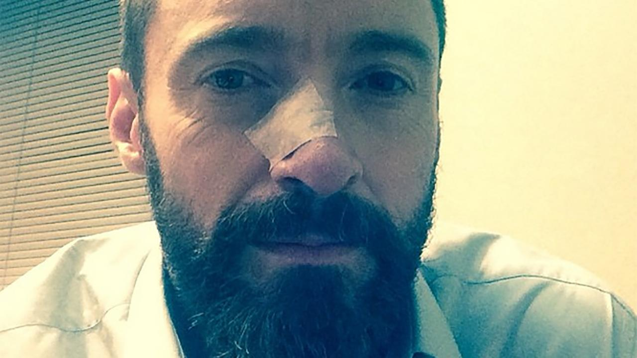 Hugh Jackman posted this photo of himself on his Instagram page on May 8, 2014. He revealed he was treated for skin cancer again, following a similar treatment in November.