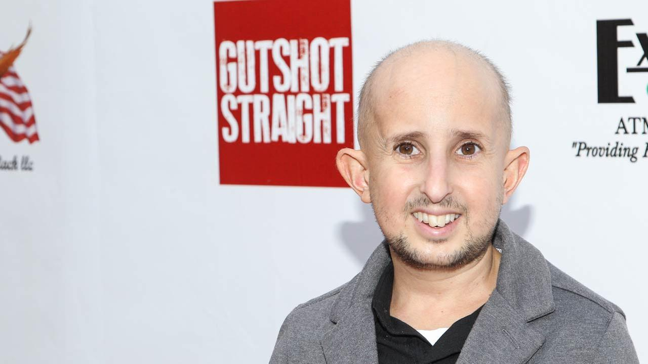 Ben Woolf, who played Meep on American Horror Story: Freak Show, died Feb. 23, 2015 from injuries he sustained after being hit in the head by a car side mirror. He was 34.Photo by Paul A. Hebert/Invision/AP