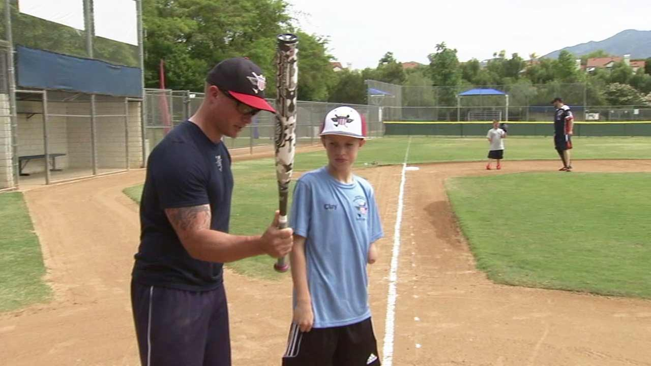 An all-inclusive weeklong softball camp is being held in Mission Viejo to help children with amputations or missing limbs learn from wounded veterans facing similar challenges.