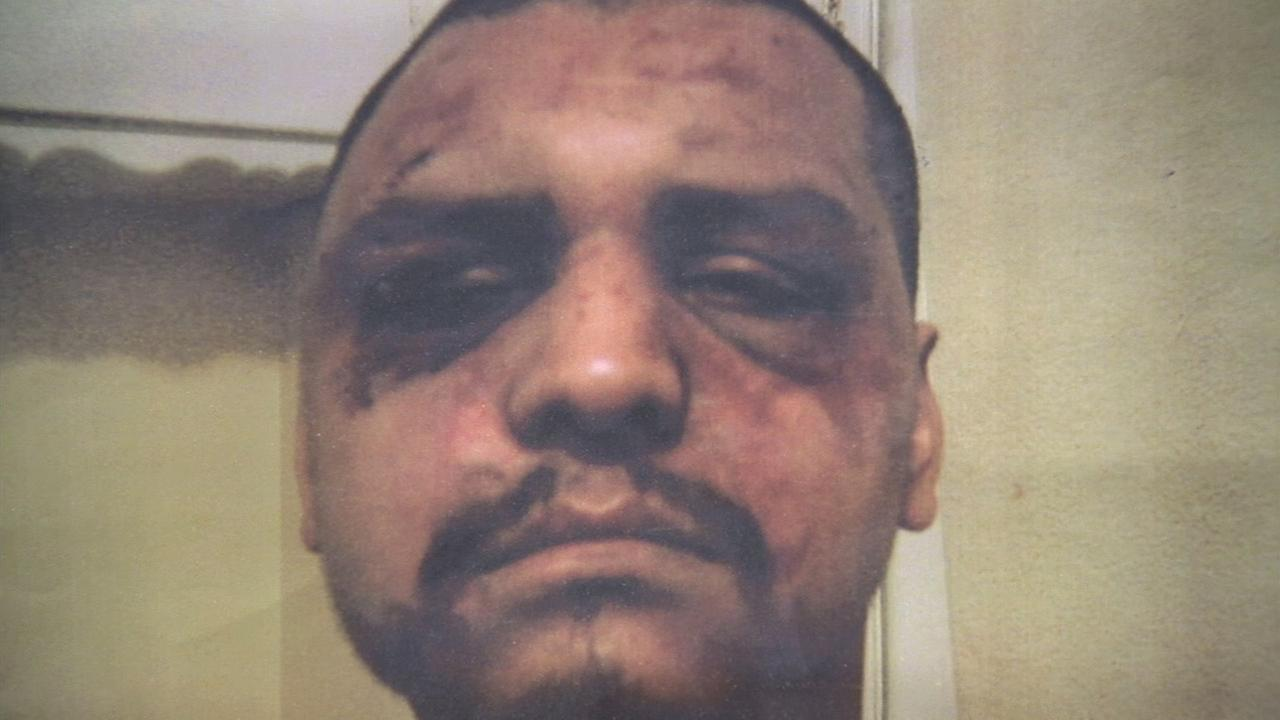 Gabriel Carrillo is shown in a photo showing the bruises he sustained after Los Angeles County sheriffs deputies beat him while visiting the Mens Central Jail in 2011.