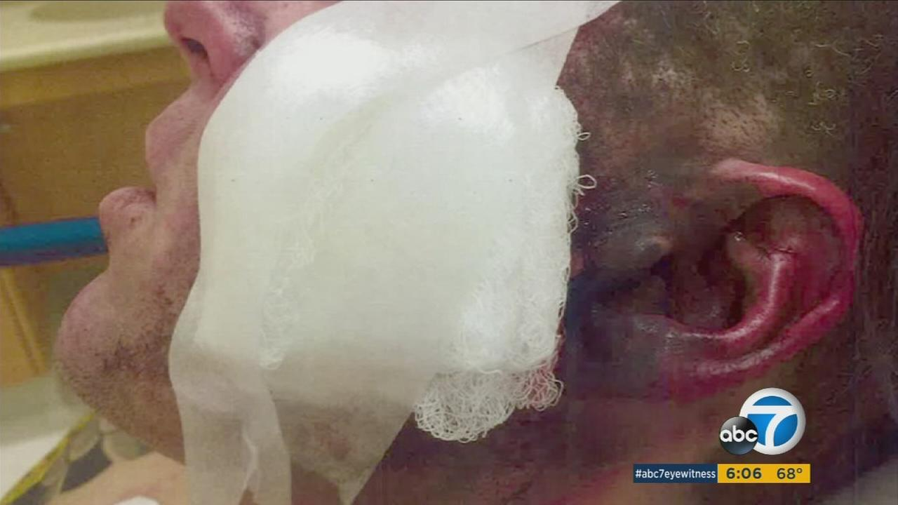A man severely burned by an electronic cigarette.