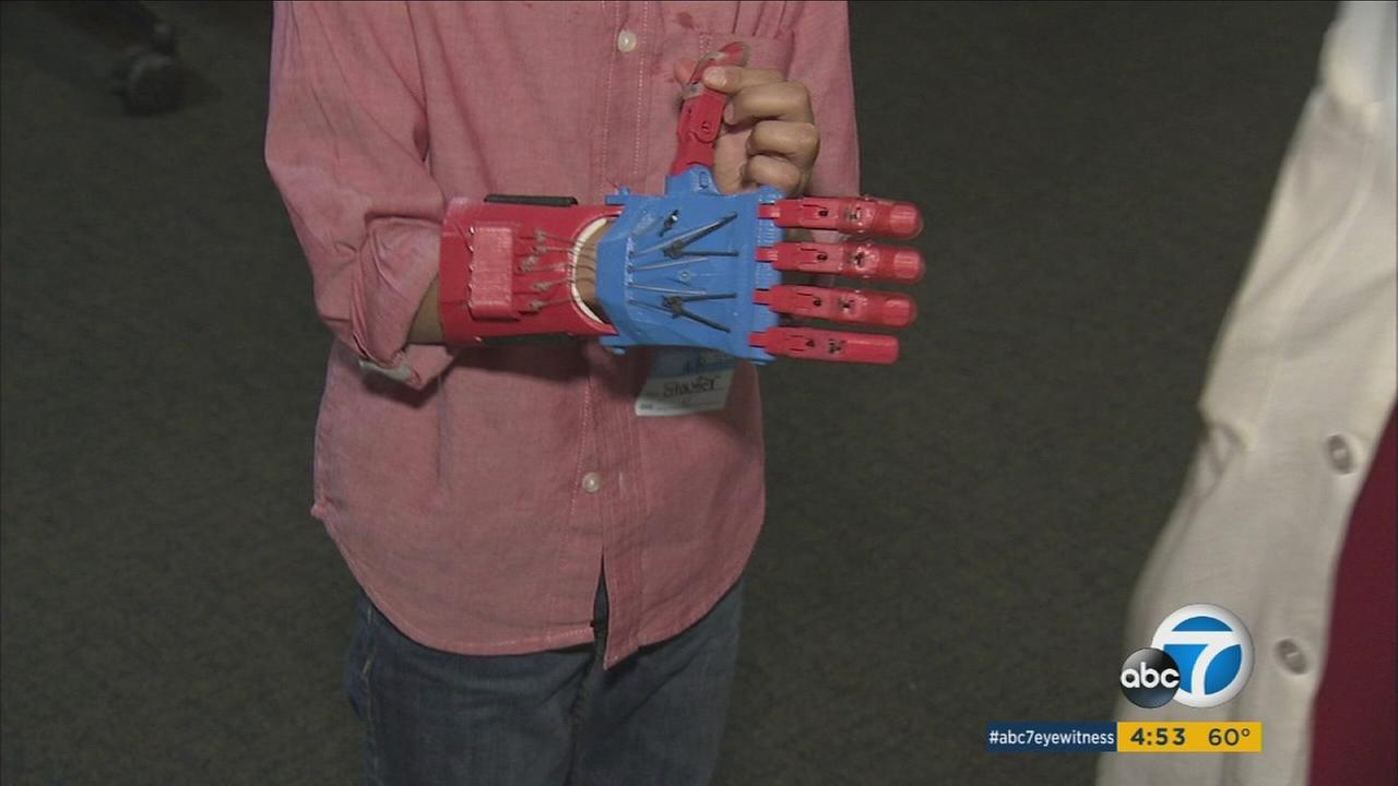 Johnny Maldonado shows off his 3D printed hand while attending a holiday party for the CATCH program at Childrens Hospital Los Angeles on Friday, Dec. 11, 2015.