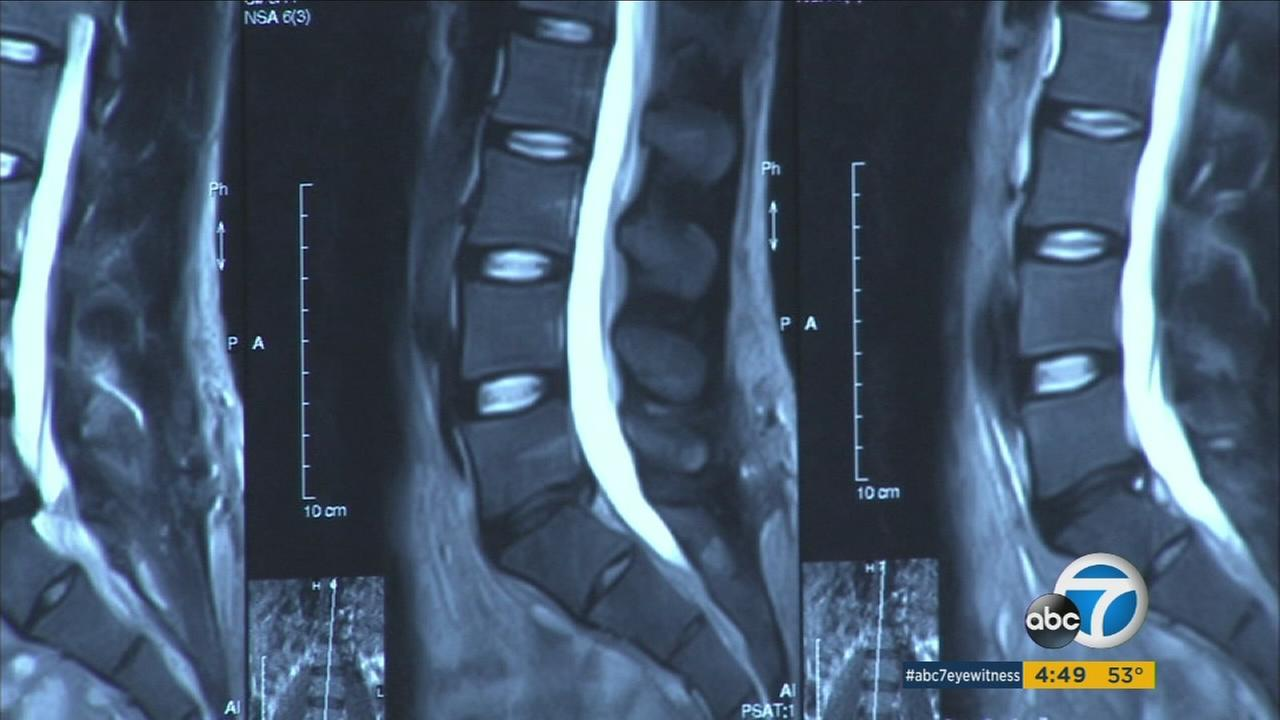 An X-ray image of spine joints are shown in an undated image.
