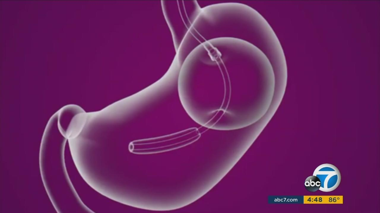 A new procedure involving balloons in the stomach offers hope for weight loss.