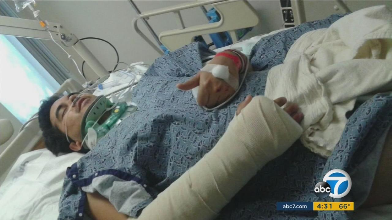 Christopher Chavez, 26, is shown in a hospital bed after being hit by a driver while walking across the street in Santa Ana on April 20, 2016.