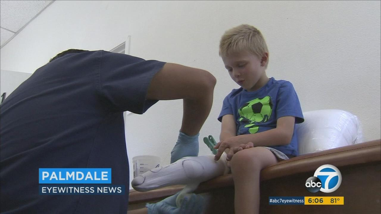 A 4-year-old boy whose prosthetic leg was stolen at an Orange County beach is getting a free replacement along with a trip to Disneyland.