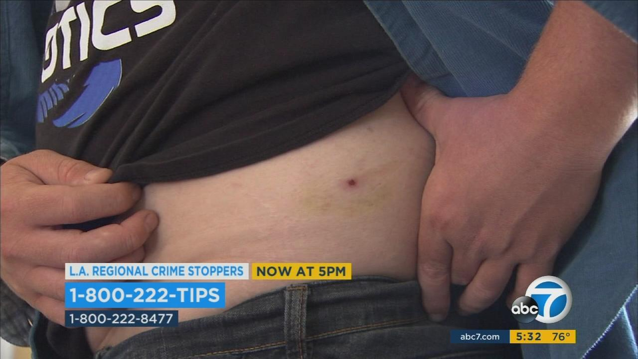 A victim in a BB gun attack shows one of the wounds he sustained during an interview.