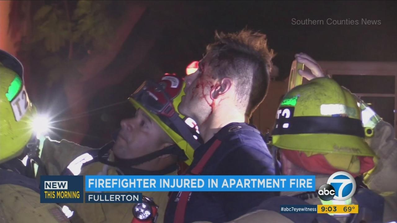A firefighter was injured when he fell from a ladder while battling a blaze at a Fullerton apartment building on Sunday, Aug. 28, 2016.
