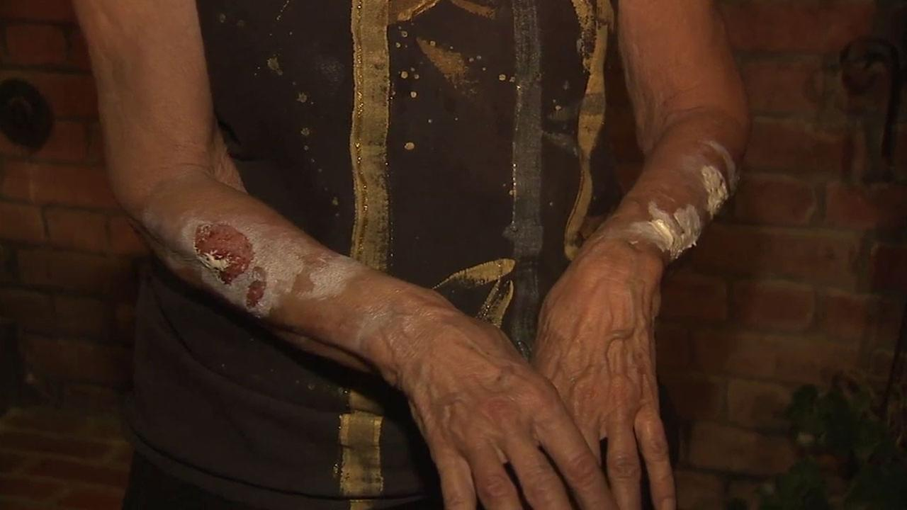 An elderly woman shows the tears on her forearms after she was confronted by a masked home-invasion robbery suspect in her Los Feliz house.