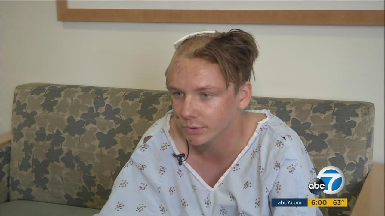 Thomas Schnider Jr. was left with a fractured skull from a beating in front of a supermarket in Norwalk.