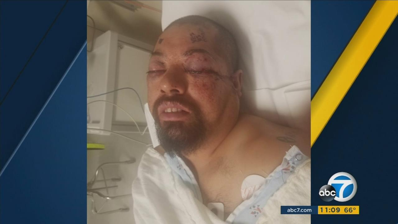 Oliver Limon seen recovering after being shot in the head in South Los Angeles.