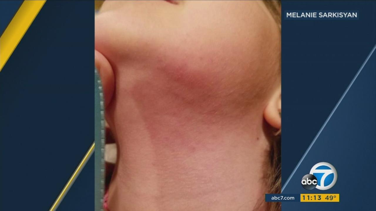 A Porter Ranch resident sent in a photo of a rash on her neck she claims happened after returning to the community following last years massive gas leak.