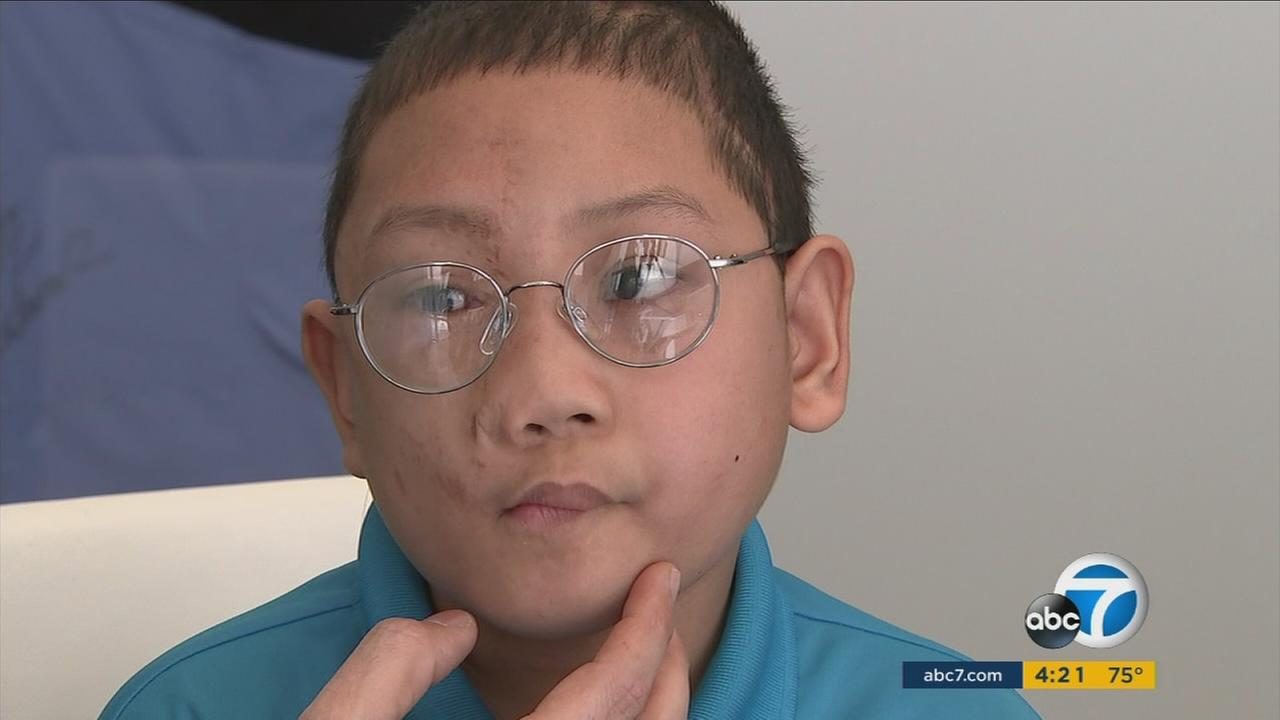 Ryder Reddig, an 11-year-old boy from the Philippines, will have much to smile about after receiving face surgery in Beverly Hills.