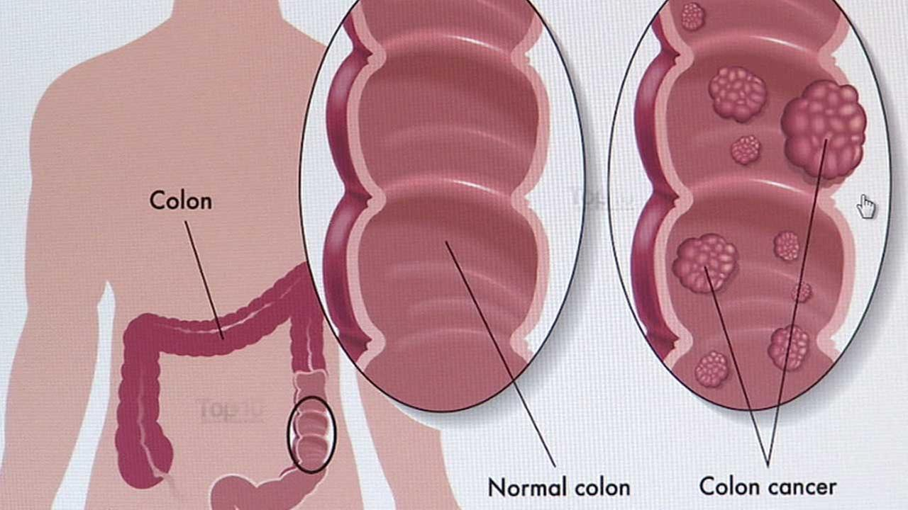 This image indicates the difference between a normal colon and a cancerous colon.