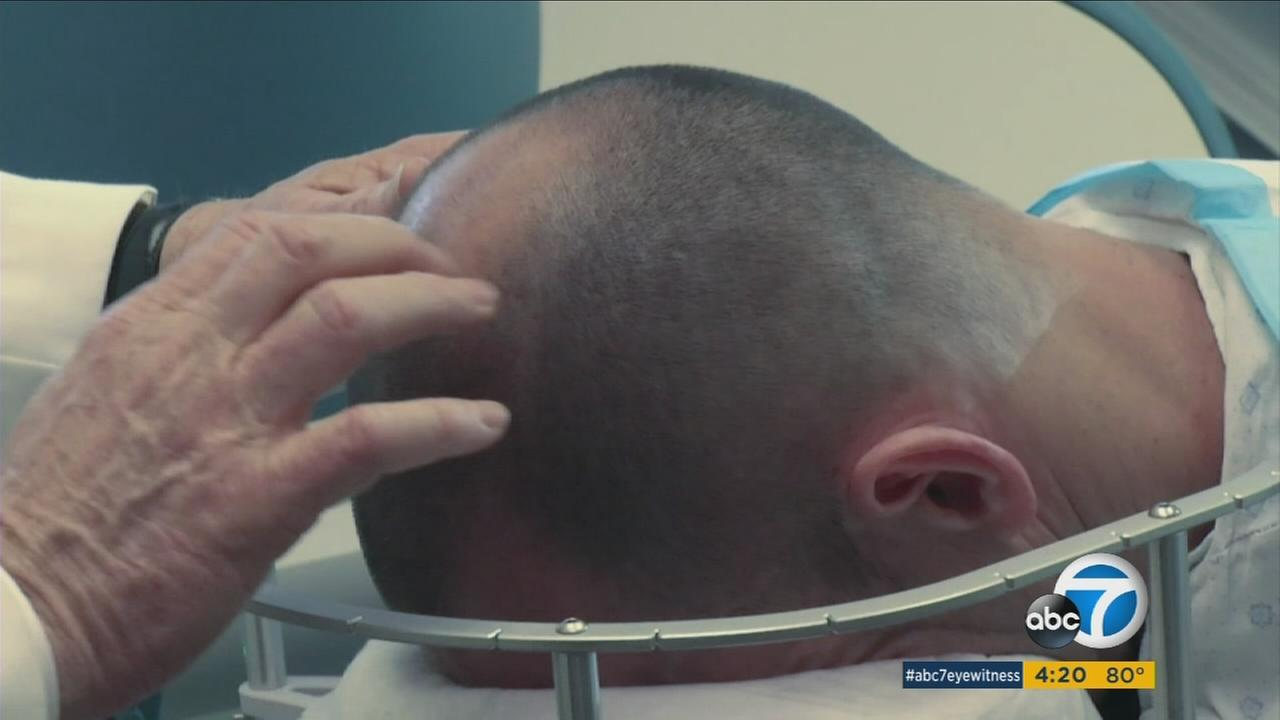 Controversial hair cloning procedure could be headed for U.S.