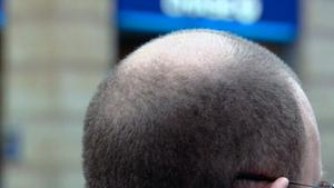 A recently published study indicated that scientists may be getting closer to finding a cure to baldness or hair graying.