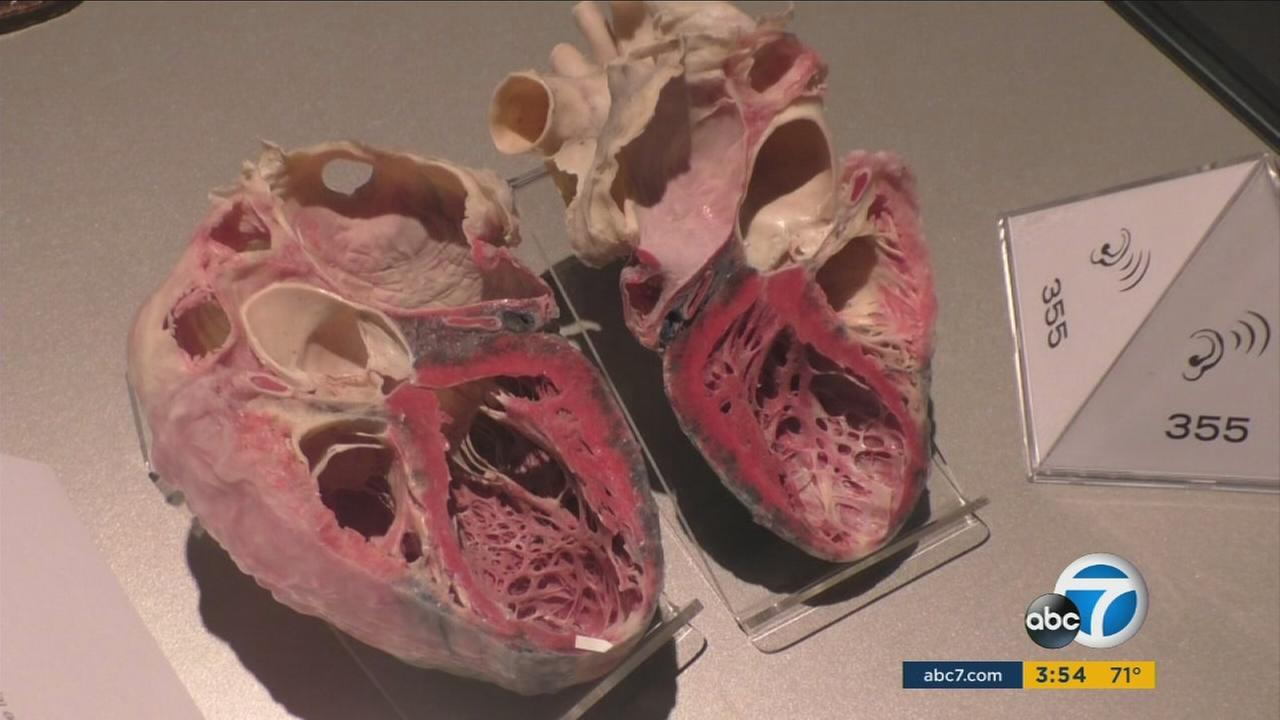 More than 200 plastinated specimens give visitors an in-depth look at how the human body looks and works.