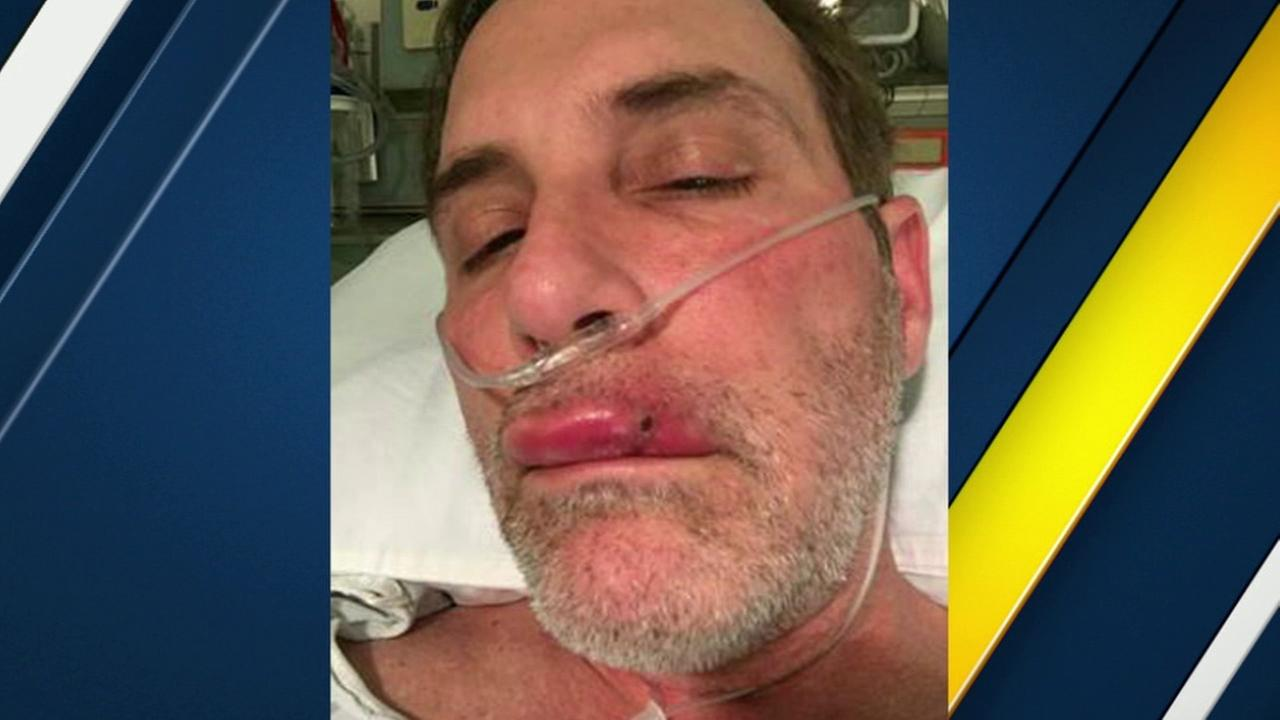 A local man is suing a popular Beverly Hills hotel, claiming he got a dangerous infection after visiting the hotels spa.